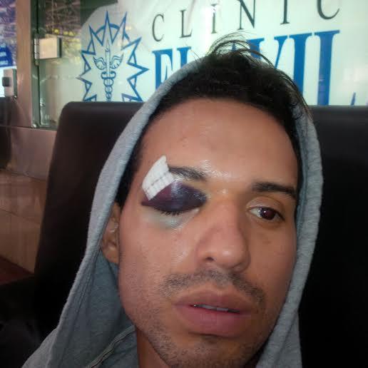 Edison Calderón. Se aprecia el golpe que sufrió en el ojo, durante su estadía en la Clínica El Ávila